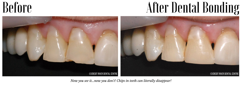 Cosmetic Dental Bonding Mississauga On Teeth Bonding