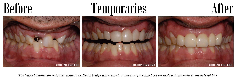 How does a bridge work on teeth